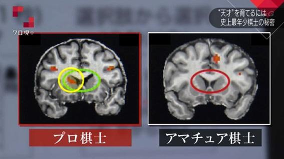 天才の脳と凡人の脳2